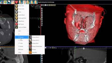 5 - WhiteFox Cone beam software - Sinus Lift Biomaterial Volume Calculation