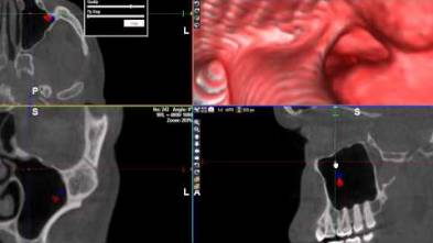 9 - WhiteFox Cone beam software - Virtual Endocsope Mode through the mandibular nerve