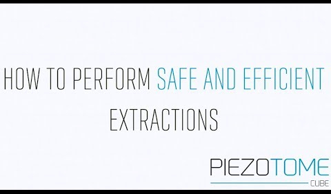 How to perform safe and efficient extractions