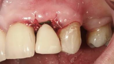 Broken Lateral Incisor - Dr Abdah