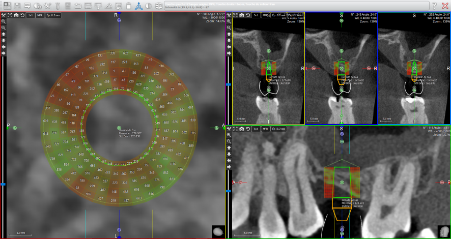 Trium implant integration