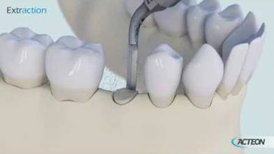 Protocole 3D Chirurgie extraction