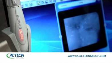 Use of Soprocare camera by Acteon US