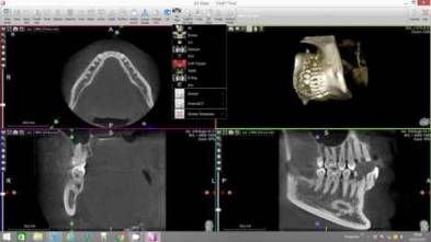 Virtual Endoscope Mandibular Nerve X-Mind Trium