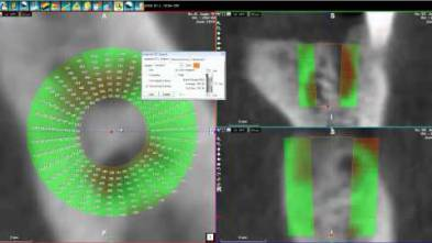 4 - WhiteFox Cone beam software - Bone Density