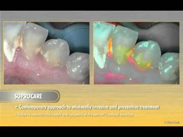 Pedagogic video for the SOPROCARE advantages and functionnalities !