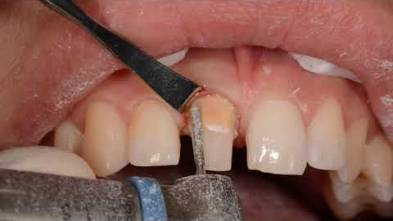 GingiProtect Acteon EN