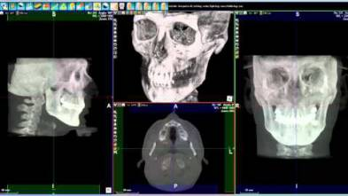 6 - WhiteFox Cone beam software - Orthodontics Cephalometry