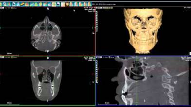 10 - WhiteFox Cone beam software - Surgical Guides Export