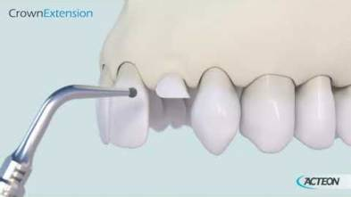 Surgery Crown Extension 3D protocol