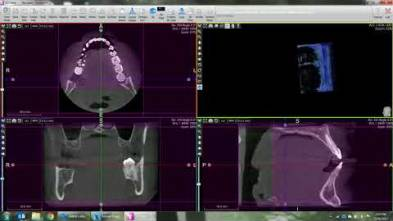Volume Measurement in ACTEON Imaging Suite
