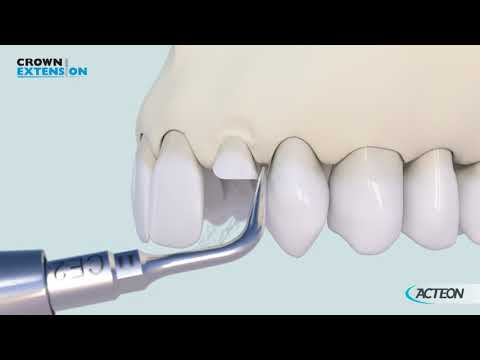 CROWN LENGTHENING PROTOCOL