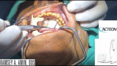 Piezotome CUBE Extraction with Dr. Ramsey A. Amin, DDS