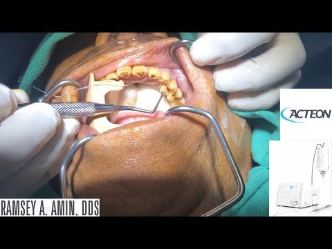 DR. RAMSEY AMIN, DDS EXTRACTION