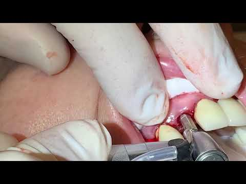 DR. JEFFREY GROSS EXTRACTION & IMMEDIATE IMPLANT